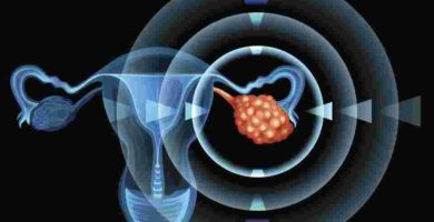 Imagen clara de Ovario Poliquistico
