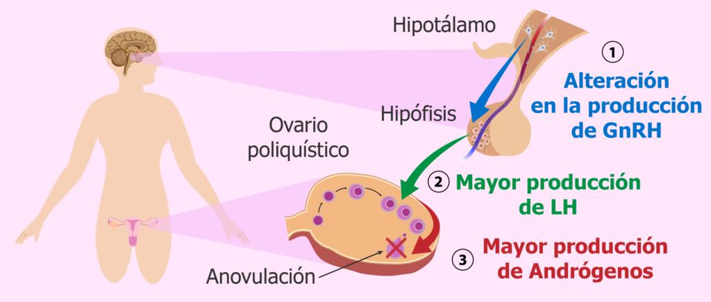definicion de ovarios poliquisticos