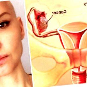 cancer-de-ovario - cancer de ovario diapositivas 300x300