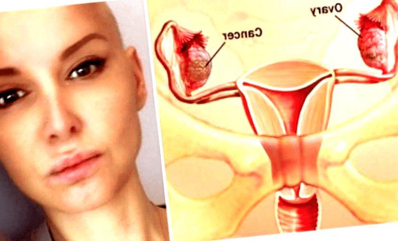 cancer-de-ovario - cancer de ovario diapositivas