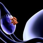 sepa los verdaderos sintomas del cancer ovarico causado por el sindrome de ovarios poliqusticos