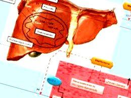 metformina - dosis de metformina en sindrome de ovario poliquistico