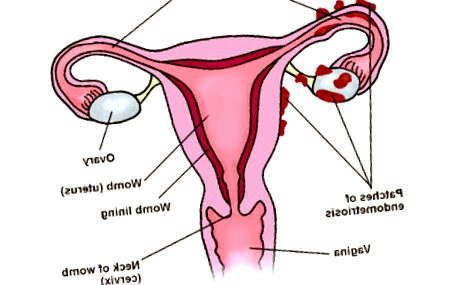 endometriosis - endometriosis beth