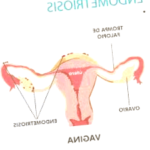 endometriosis - endometriosis bloating 150x150