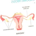 endometriosis - endometriosis bloating 150x150