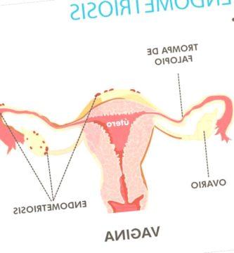endometriosis - endometriosis bronquial 333x360