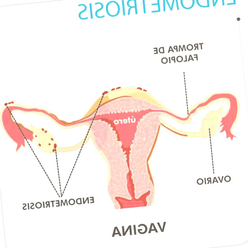 endometriosis - endometriosis bronquial