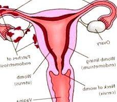 endometriosis - endometriosis como se detecta 229x200