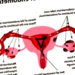 endometriosis - endometriosis complicaciones 150x150