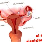 endometriosis - endometriosis cuidados de enfermeria 150x150