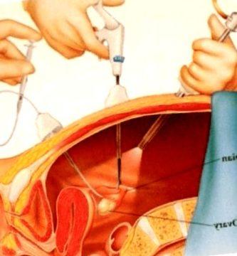 endometriosis - endometriosis definicion 333x360