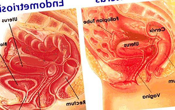 endometriosis - endometriosis diagnosis